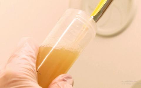 Phát triển vi khuẩn ăn nhựa
